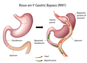 gastric-Bypass-melbouirne